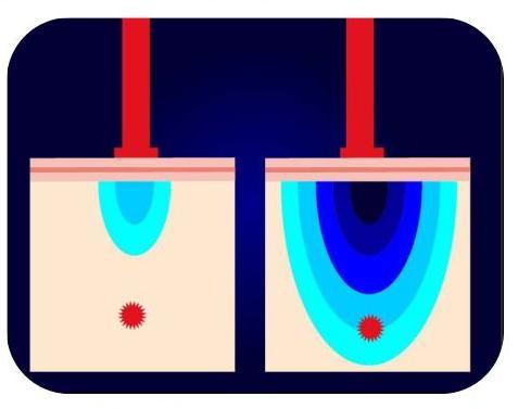 Laser Penetration